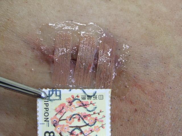 wound200