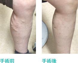 下肢静脈瘤の治療方法の変遷