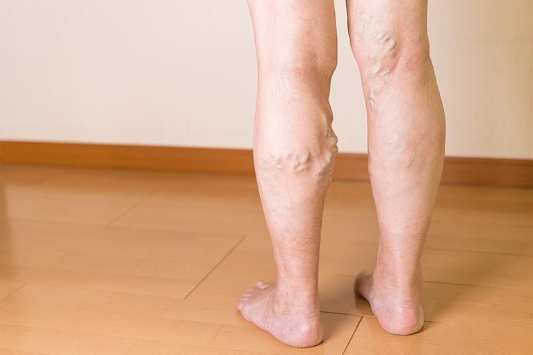 下肢静脈瘤とはどのような病気か